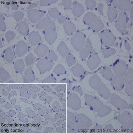 Immunohistochemistry - Anti-Cytokeratin 16 antibody [EP1615Y] (ab76416)