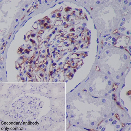 Immunohistochemistry (Formalin/PFA-fixed paraffin-embedded sections) - Anti-CD31 antibody [EPR3094] (ab76533)