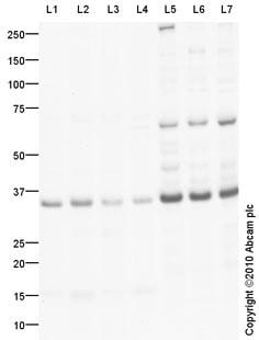 Western blot - Anti-CLEC2A antibody (ab76711)