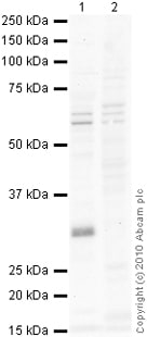 Western blot - Anti-LYRIC antibody (ab76742)