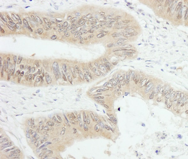 Immunohistochemistry (Formalin/PFA-fixed paraffin-embedded sections) - Anti-PTPN12 antibody (ab76939)