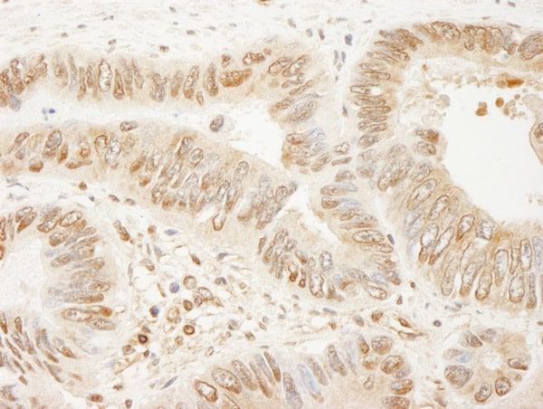 Immunohistochemistry (Formalin/PFA-fixed paraffin-embedded sections) - Anti-SSH3 antibody (ab76945)