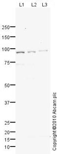 Western blot - Anti-MTMR14 antibody (ab76952)