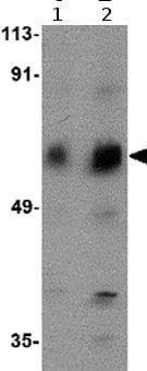 Western blot - Anti-Activin A Receptor Type IC antibody (ab77051)