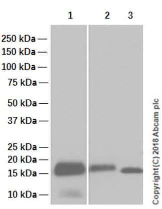 Western blot - Anti-Myoglobin antibody [EP3081Y] (ab77232)