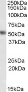 Western blot - Anti-NR0B1 / Dax1 antibody (ab77260)