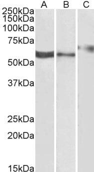 Western blot - Anti-P2RX4 antibody (ab77434)
