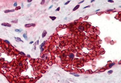 Immunohistochemistry (Formalin/PFA-fixed paraffin-embedded sections) - Anti-Band 3 antibody (ab78067)