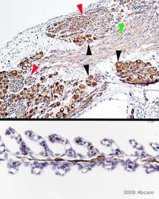 Immunohistochemistry (Formalin/PFA-fixed paraffin-embedded sections) - Anti-beta III Tubulin antibody [2G10] - Neuronal Marker (ab78078)