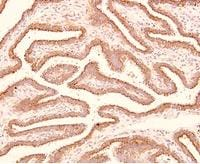 Immunohistochemistry (Formalin/PFA-fixed paraffin-embedded sections) - Anti-Trophinin antibody [3-11] (ab78117)