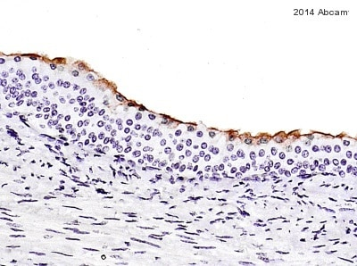 Immunohistochemistry (Formalin/PFA-fixed paraffin-embedded sections) - Anti-Uroplakin III antibody [SFI-1] (ab78196)