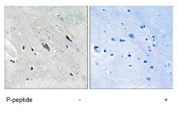 Immunohistochemistry (Formalin/PFA-fixed paraffin-embedded sections) - Anti-GAB2 (phospho Y643) antibody (ab78262)