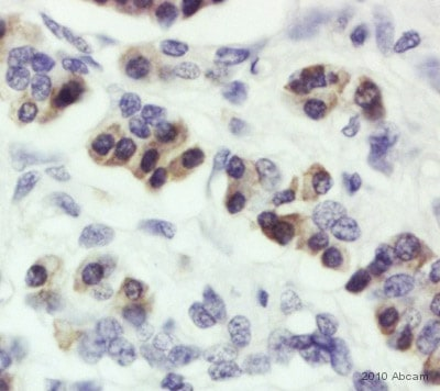 Immunohistochemistry (Formalin/PFA-fixed paraffin-embedded sections) - Anti-SEL1L antibody (ab78298)