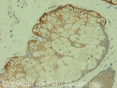 Immunohistochemistry (Formalin/PFA-fixed paraffin-embedded sections) - Anti-CD166 antibody (ab78649)