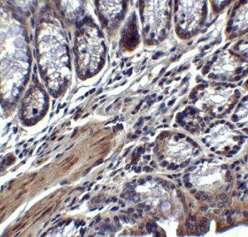 Immunohistochemistry (Formalin/PFA-fixed paraffin-embedded sections) - Anti-IL17 antibody (ab79056)