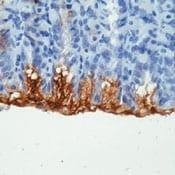 Immunohistochemistry (Formalin/PFA-fixed paraffin-embedded sections) - Mucin 5AC antibody [45M1] (Biotin) (ab79082)