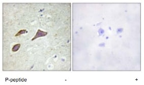 Immunohistochemistry (Formalin/PFA-fixed paraffin-embedded sections) - SCNN1B (phospho T615) antibody (ab79172)