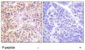 Immunohistochemistry (Formalin/PFA-fixed paraffin-embedded sections) - Anti-STK3 (phospho T180) + MST1 (phospho T183) antibody (ab79199)