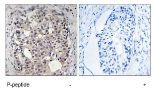 Immunohistochemistry (Formalin/PFA-fixed paraffin-embedded sections) - Anti-Cdc25A (phospho S178) antibody (ab79252)