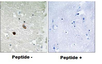 Immunohistochemistry (Formalin/PFA-fixed paraffin-embedded sections) - Anti-CaMK2 beta gamma delta antibody (ab79359)