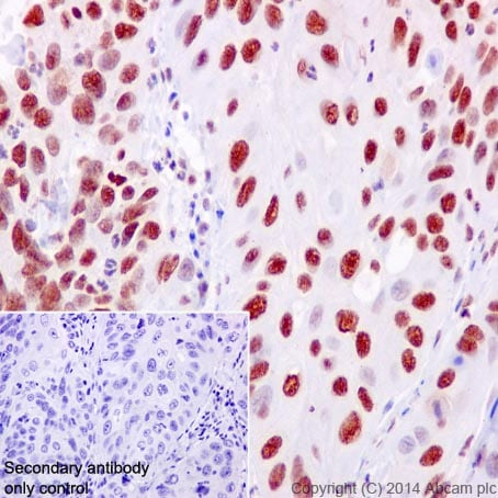 Immunohistochemistry (Formalin/PFA-fixed paraffin-embedded sections) - Anti-RPA70 antibody [EPR3472] (ab79398)