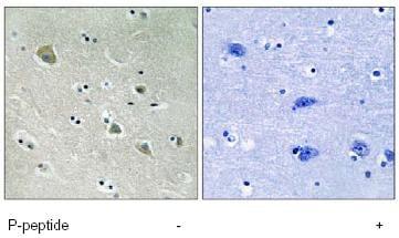Immunohistochemistry (Formalin/PFA-fixed paraffin-embedded sections) - Anti-PAK1 (phospho S204) antibody (ab79503)