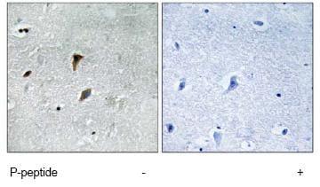 Immunohistochemistry (Formalin/PFA-fixed paraffin-embedded sections) - Anti-MEK3 (phospho T222) antibody (ab79586)