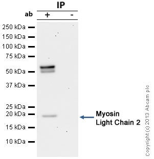 Immunoprecipitation - Anti-Myosin Light Chain 2 antibody (ab79935)