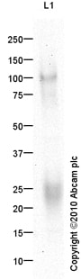 Western blot - Anti-Transmembrane 4 L6 family member 1 antibody (ab79958)