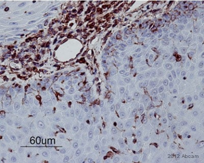 Immunohistochemistry (Formalin/PFA-fixed paraffin-embedded sections) - Anti-Vimentin antibody [V9] - Cytoskeleton Marker (ab8069)