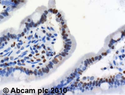 Immunohistochemistry (Formalin/PFA-fixed paraffin-embedded sections) - Anti-MTA2 antibody (ab8106)