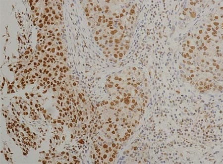 Immunohistochemistry (Formalin/PFA-fixed paraffin-embedded sections) - Anti-HIF-2-alpha [ep190b] antibody (ab8365)