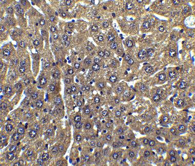 Immunohistochemistry (Formalin/PFA-fixed paraffin-embedded sections) - Anti-FLIP antibody (ab8421)