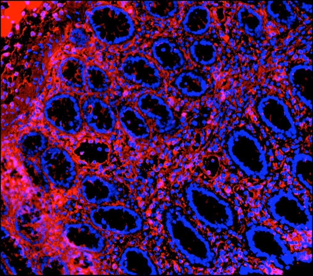 Immunohistochemistry (Frozen sections) - Anti-Vimentin antibody [RV202] - Cytoskeleton Marker (ab8978)