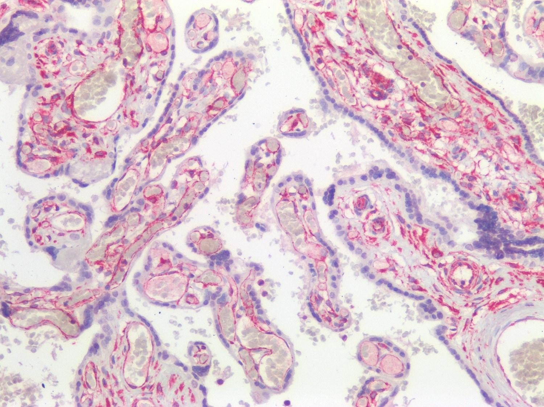 Immunohistochemistry (Formalin/PFA-fixed paraffin-embedded sections) - Anti-Vimentin antibody [RV202] - Cytoskeleton Marker (ab8978)