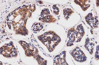 Immunohistochemistry (Formalin/PFA-fixed paraffin-embedded sections) - Anti-CCN1 antibody [3H3] (ab80112)
