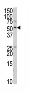 Western blot - Anti-TRIP antibody (ab80170)