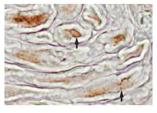 Immunohistochemistry (Formalin/PFA-fixed paraffin-embedded sections) - Anti-MFAP4 antibody (ab80319)