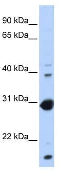 Western blot - Anti-NR0B2 antibody (ab80417)