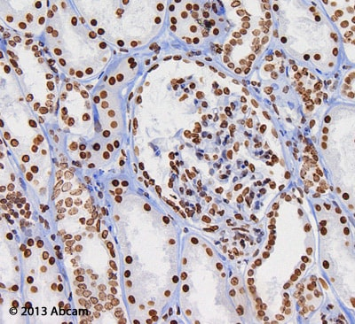 Immunohistochemistry (Formalin/PFA-fixed paraffin-embedded sections) - EXPOSE Mouse and Rabbit Specific HRP/DAB Detection IHC kit  (ab80436)