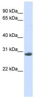 Western blot - Anti-YIPF6 antibody (ab80442)