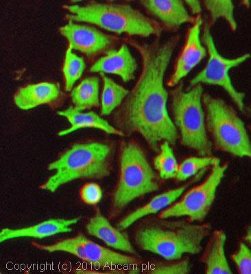 Immunocytochemistry/ Immunofluorescence - Anti-NOX2/gp91phox antibody (ab80508)