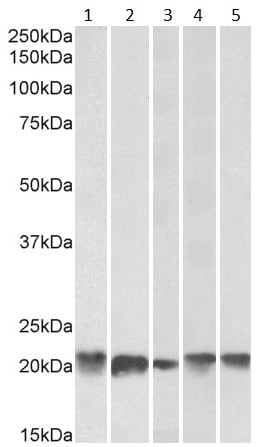 Western blot - Anti-Ferritin Light Chain antibody (ab80585)