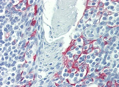 Immunohistochemistry (Formalin/PFA-fixed paraffin-embedded sections) - Anti-LIMD1 antibody (ab81186)