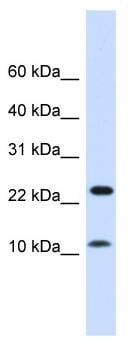 Western blot - Anti-FAM36A antibody (ab81308)