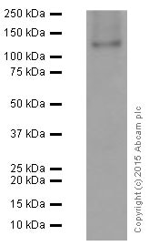 Western blot - Anti-Neuropilin 1 antibody [EPR3113] (ab81321)