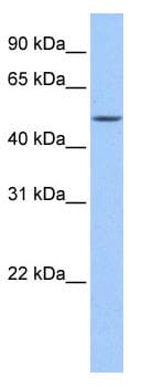 Western blot - Anti-FAAH2 antibody (ab81510)