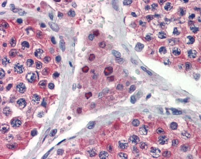 Immunohistochemistry (Formalin/PFA-fixed paraffin-embedded sections) - Anti-Isocitrate dehydrogenase antibody (ab81653)