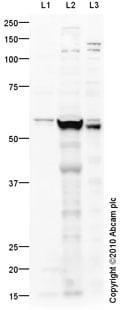 Western blot - Anti-PNPLA3 antibody (ab81874)