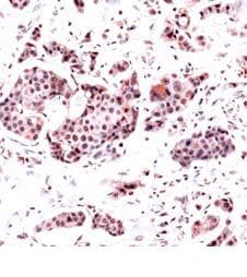 Immunohistochemistry (Formalin/PFA-fixed paraffin-embedded sections) - Anti-Dihydrofolate reductase (DHFR) antibody, prediluted (ab82166)